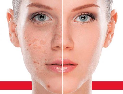 Pigmentforandringer er et vanlig hudproblem som forekommer både hos menn og kvinner